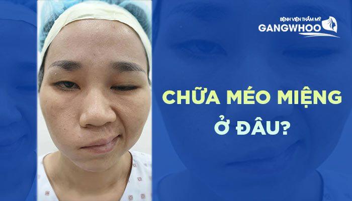 chua meo mieng o dau bvtm gangwhoo 1