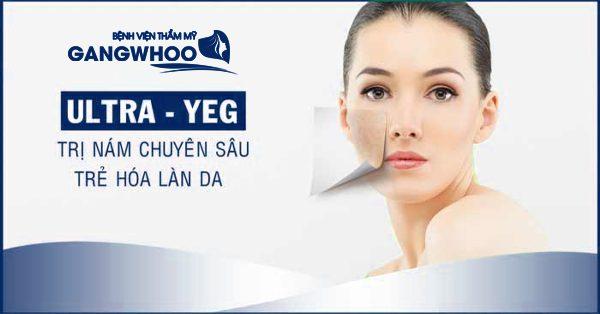 Điều Trị Nám Ultra YEG Cho Làn Da Trẻ Đẹp Sau Tuổi 30