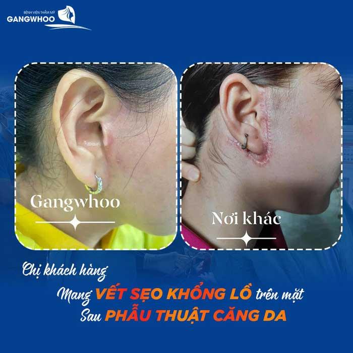 Keloid Scar Treatment