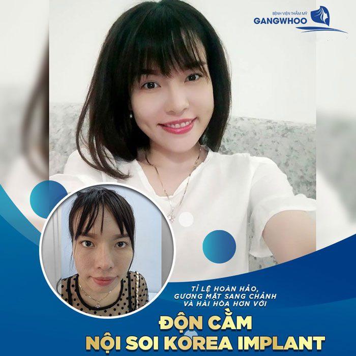 Độn Cằm Korea Implant Dáng V Line
