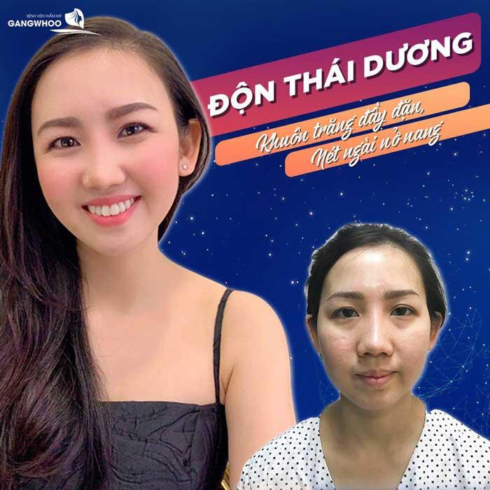 don thai duong bvtm gangwhoo 2