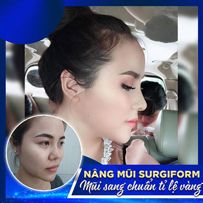 Hình ảnh khách hàng trước và sau nâng mũi Surgiform