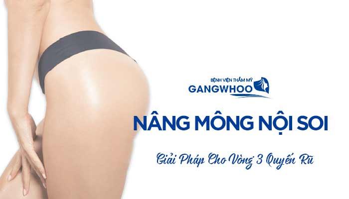 Nâng Mông Nội Soi - Giải Pháp Cho Vòng 3 Quyến Rũ
