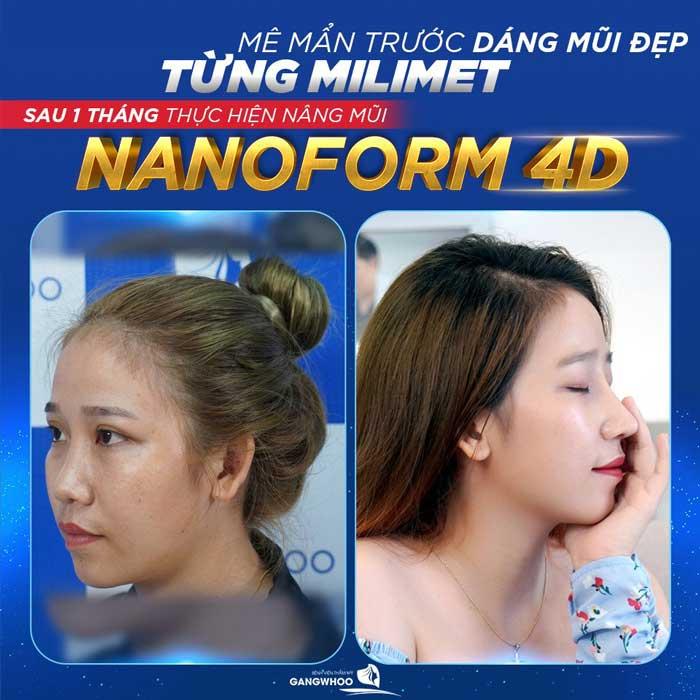 nang mui nanoform 1 2