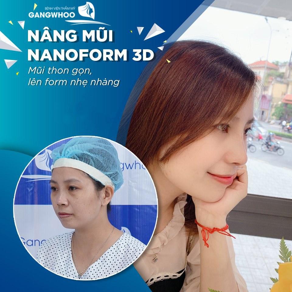 nang mui nanoform 3d