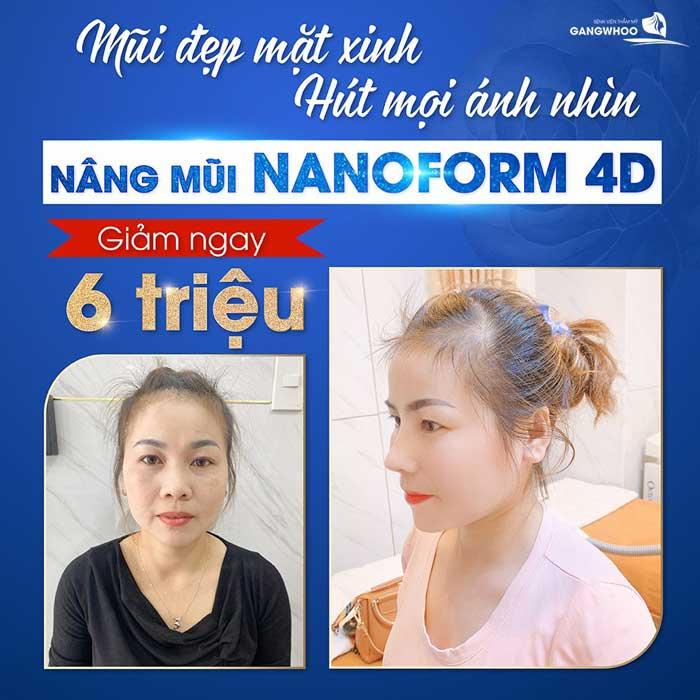 nang mui nanoform 4d 1
