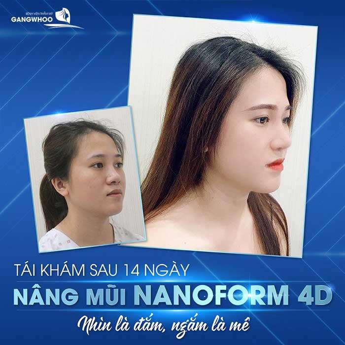 nang mui nanoform 4d 2 1