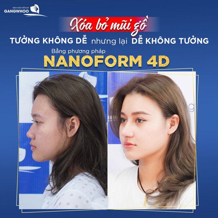 nang mui nanoform 4d 2