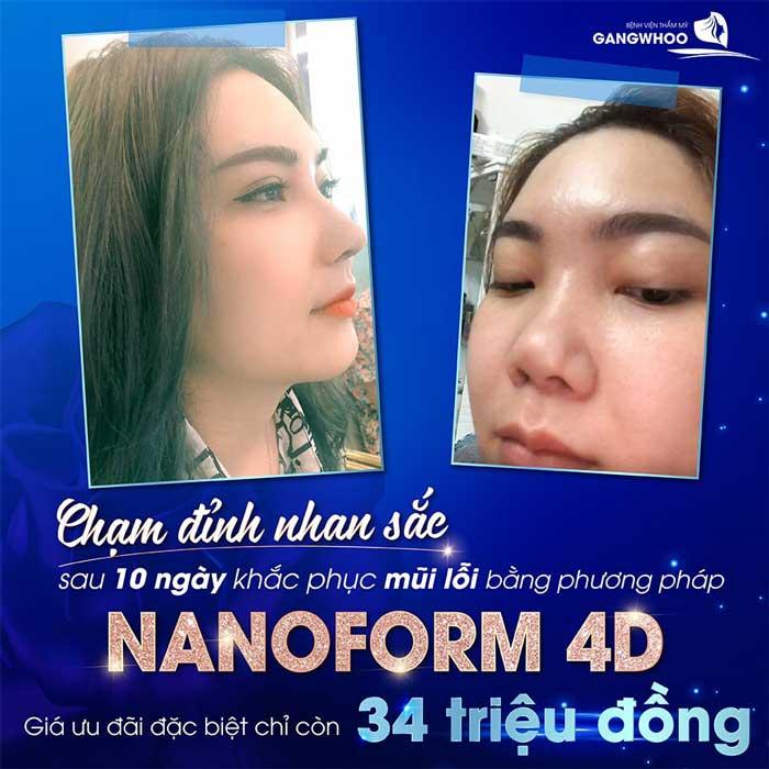 nang mui nanoform