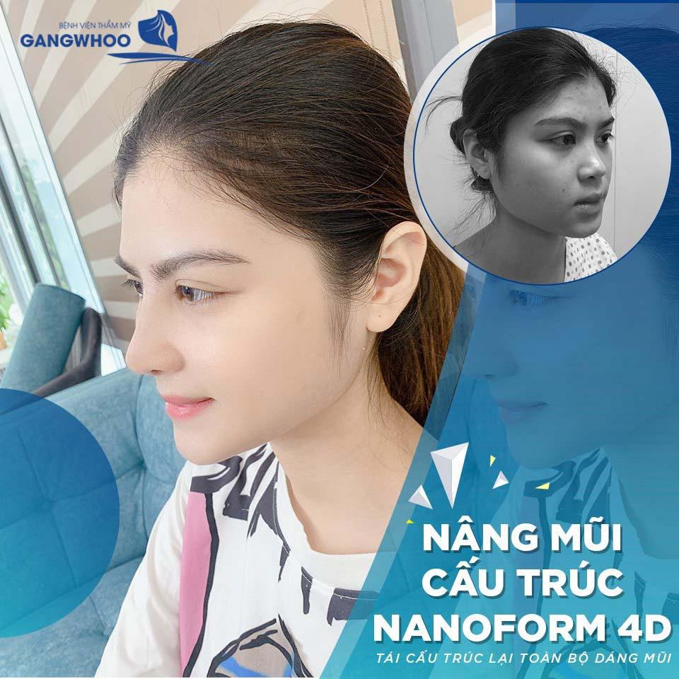 nang mui nanoform4d