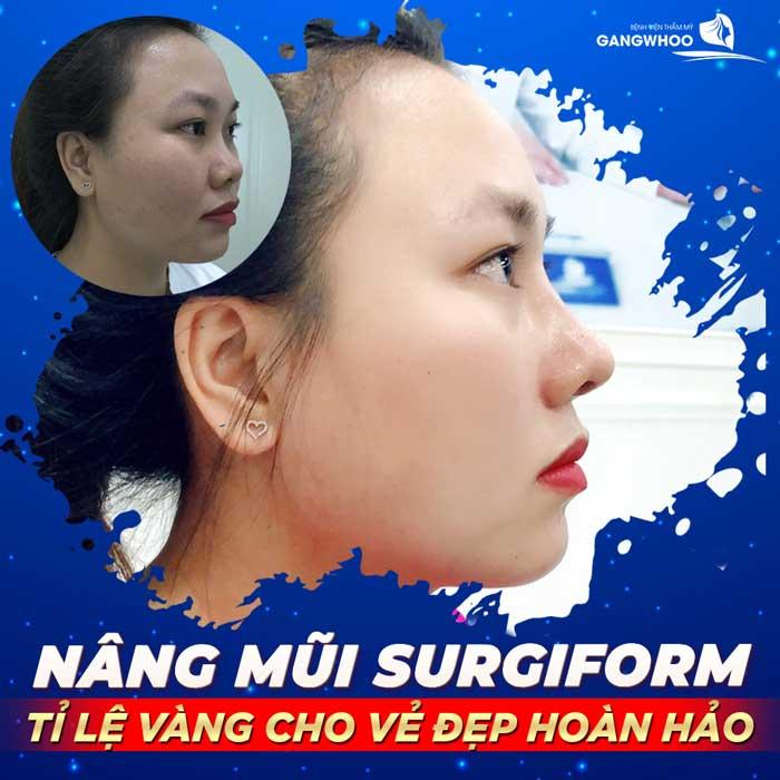 nang mui surgiform