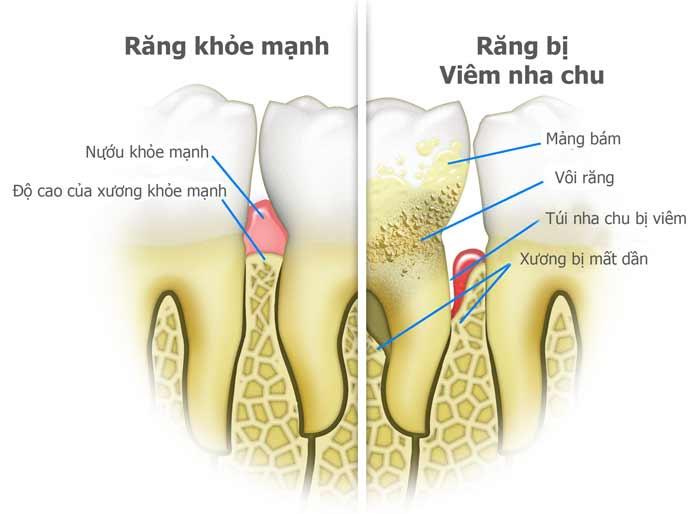 Nạo Túi Nha Chu Hồi Phục Răng Yếu, Răng Lung Lay Gãy Rụng