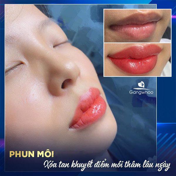 Phun Môi Vi Chạm TBG - Đánh Bay Môi Thâm