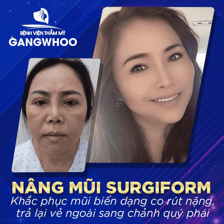 phuong phap nang mui surgiform 768x768 min