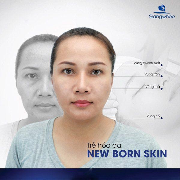 Trẻ Hóa Da New Born Skin - Làn Da Khỏe Đẹp