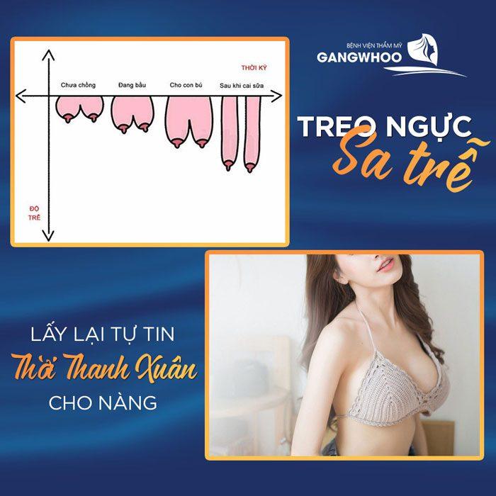 Giá treo ngực sa trễ là: 45,000,000đ – 65,000,000đ tùy tình trạng chảy xệ.