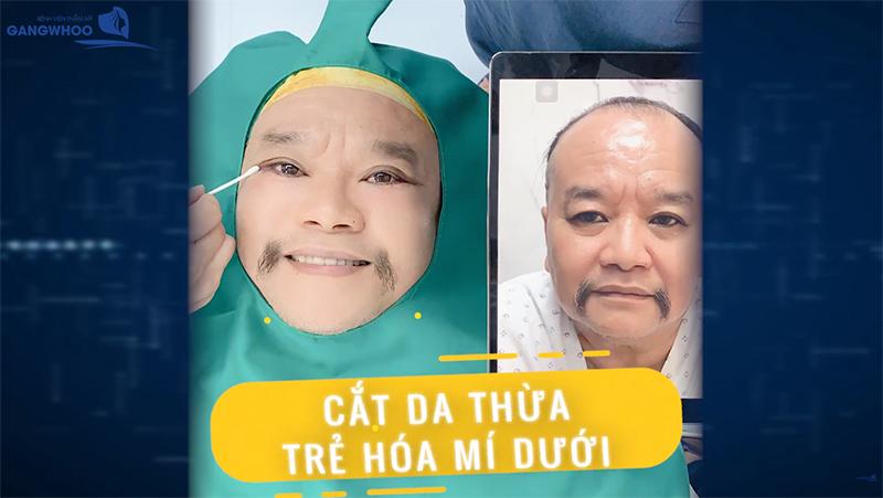 Diễn viên hài Tam Thanh chọn cắt mí tại bệnh viện thẩm mỹ Gangwhoo