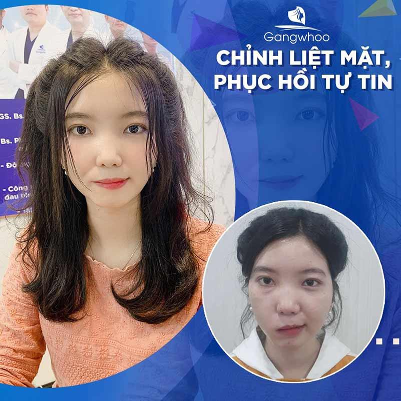 Khách hàng điều trị liệt mặt tại BVTM Gangwhoo