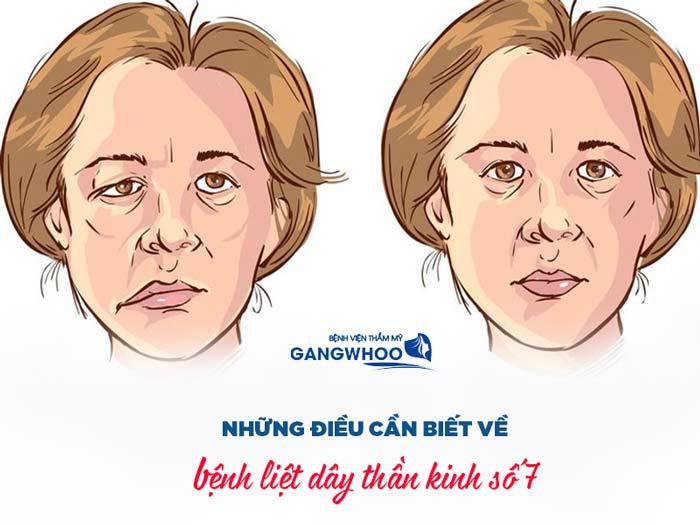 Tìm hiểu về bệnh liệt dây thần kinh số 7
