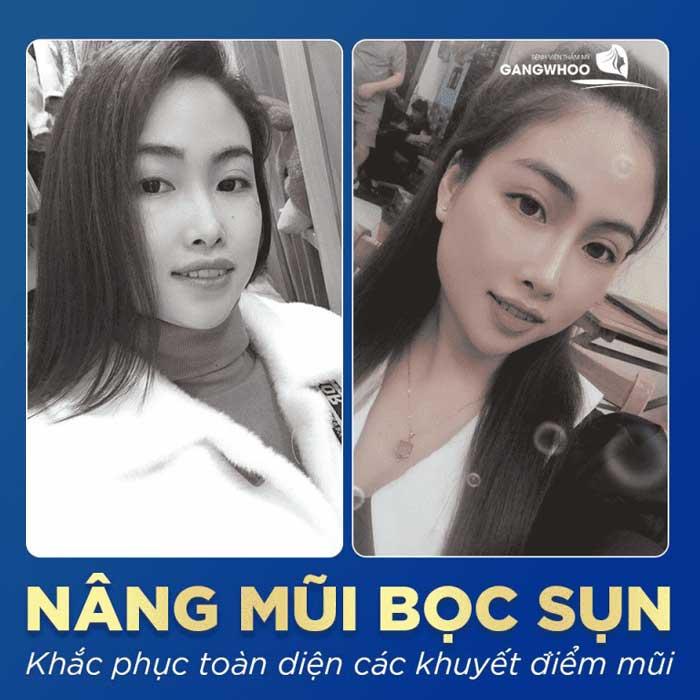 nang mui boc sun bvtm gangwhoo 6