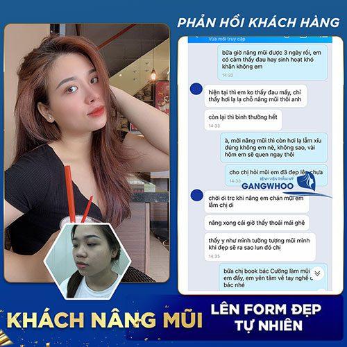 Customers' feedback after rhinoplasty