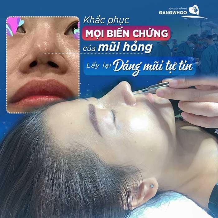 Giá chỉnh dị tật mũi tại BVTM Gangwhoo là: 15,000,000 VNĐ