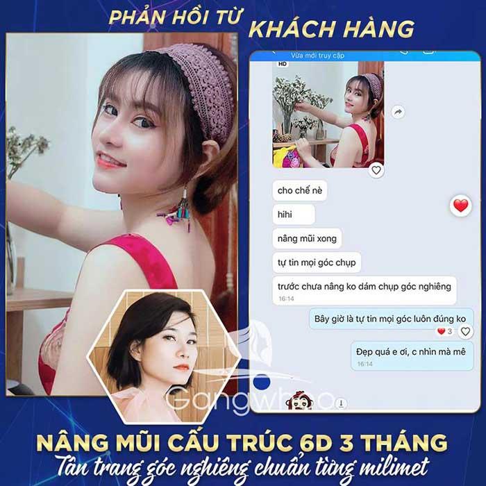feed back khach hang nang mui cau truc 4D