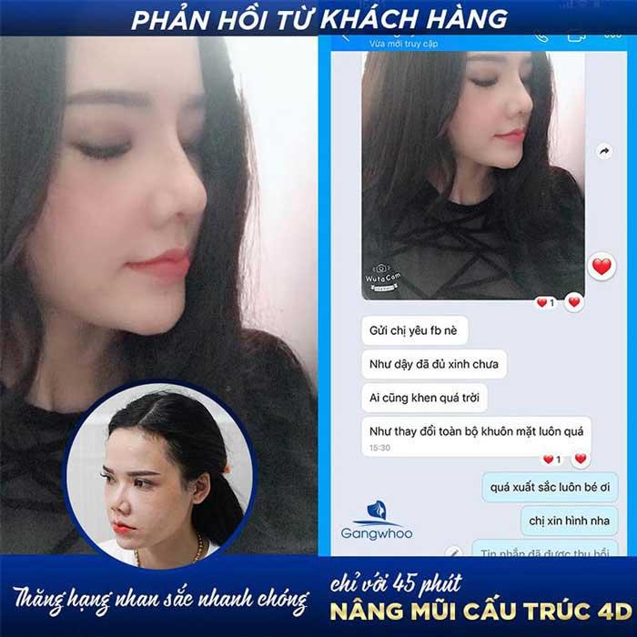 feedback khach hang nang mui cau truc 4d