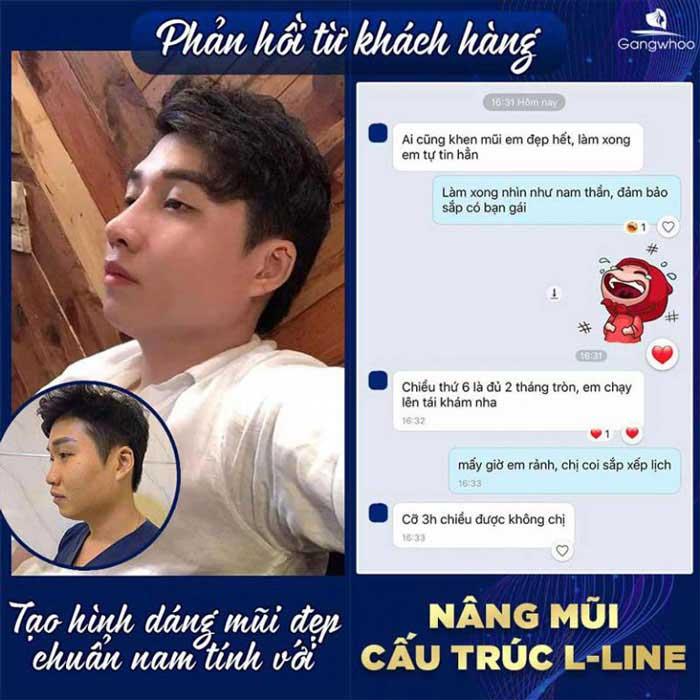 feedback khach hang nang mui cau truc lline tmv gangwhoo 768x768 1
