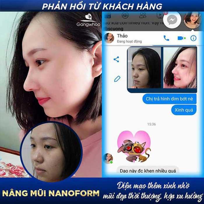 feedback khach hang nang mui nanofrom tmv gangwhoo 768x768 1