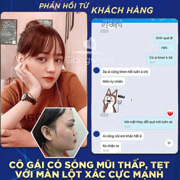 feedback khach hang nang mui tmv gangwhoo 768x768 1