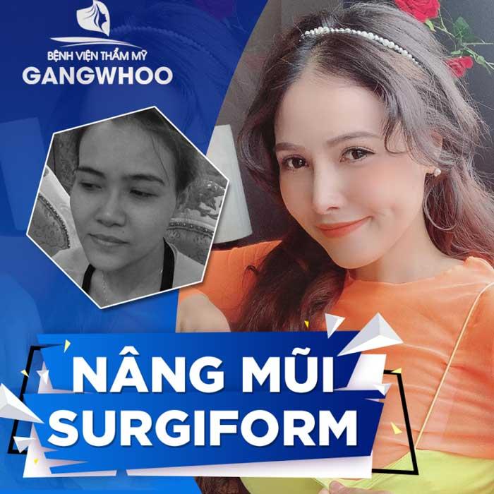 Chi phí nâng mũi Surgiform tại BVTM Gangwhoo là: 80,000,000 VNĐ