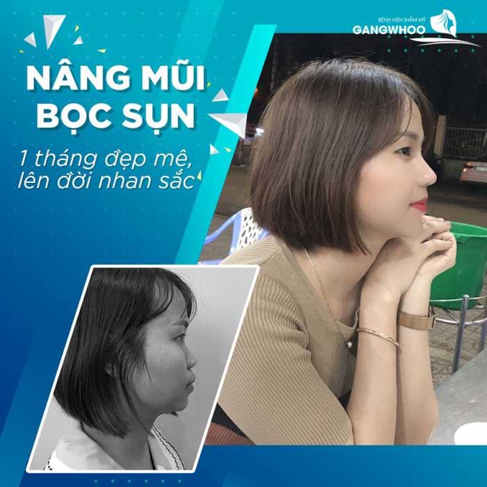 Giá nâng mũi bọc sụn tại BVTM Gangwhoo là: 14,000,000 VNĐ