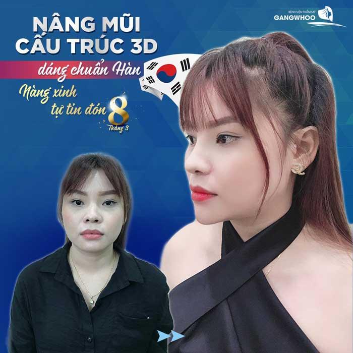 nang mui bvtm gangwhoo 1