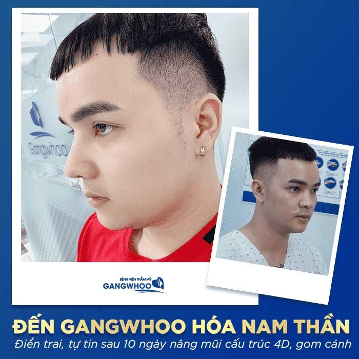 nang mui l line cho nam bvtm gangwhoo 2