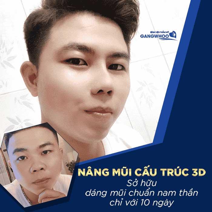 nang mui l line cho nam bvtm gangwhoo 3