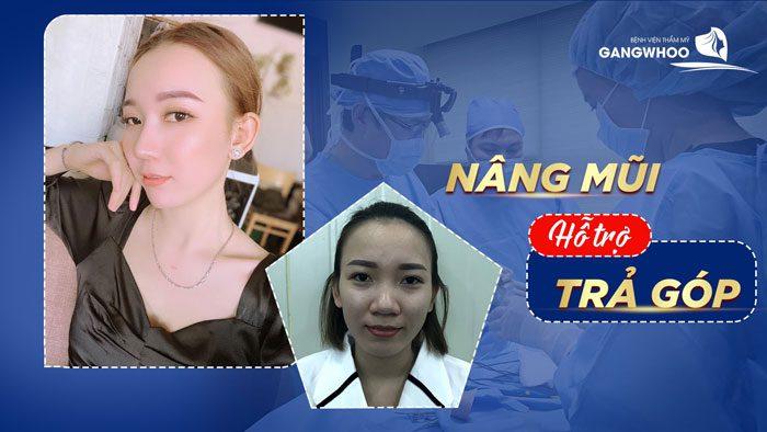 """Chương trình """"Nâng Mũi Trả Góp"""" tại BVTM Gangwhoo"""