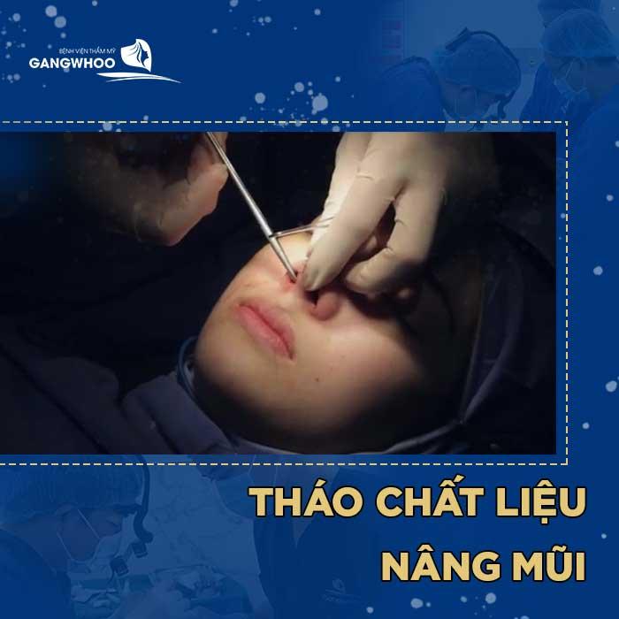 Giá tháo chất liệu mũi tại BVTM Gangwhoo là: 2,000,000 – 5,000,000 VNĐ