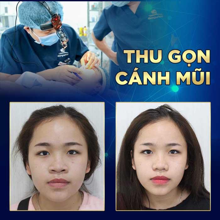 Giá thu nhỏ đầu mũi tại BVTM Gangwhoo là: 7,000,000 VNĐ