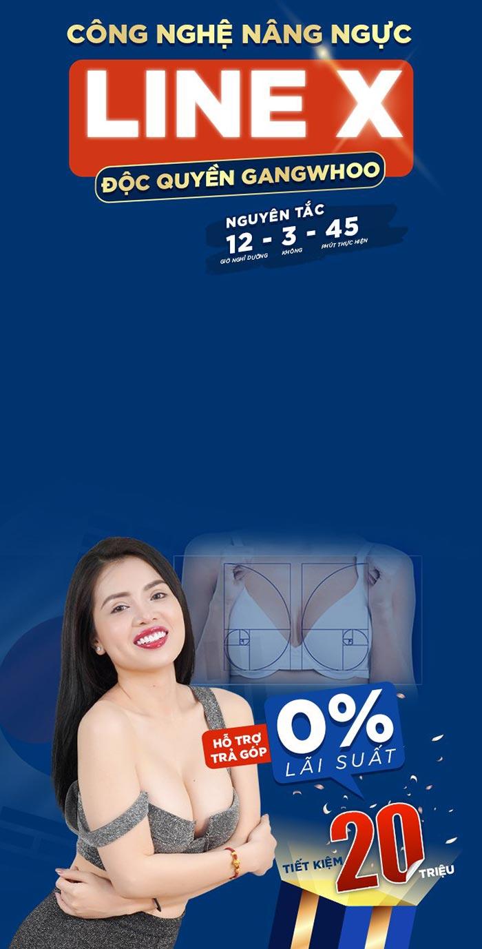 B1 Ngực Mobile1 1.png 1
