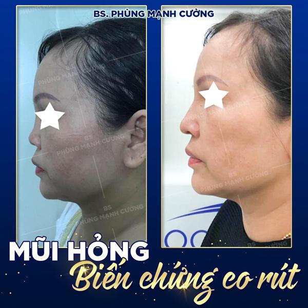 Mũi co rút do nâng mũi hỏng vẫn được khắc phục triệt để bởi bác sĩ Phùng Mạnh Cường