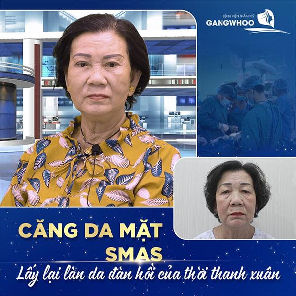 Bảng Giá Căng Da Mặt Tại Gangwhoo
