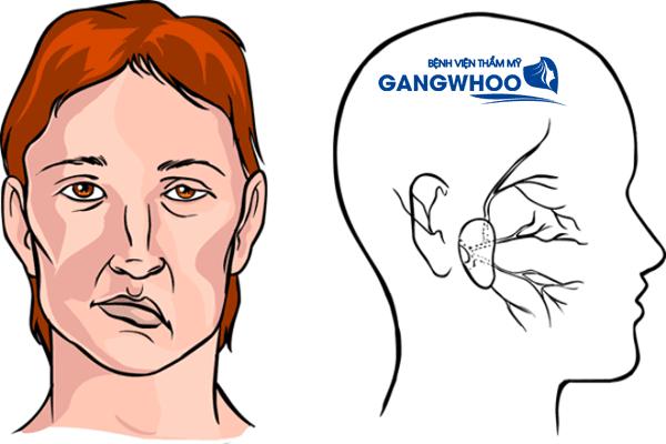 Cách chữa liệt dây thần kinh số 7 bằng lươn chi tiết nhất