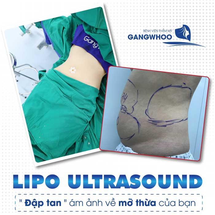 lipo ultrasound 4