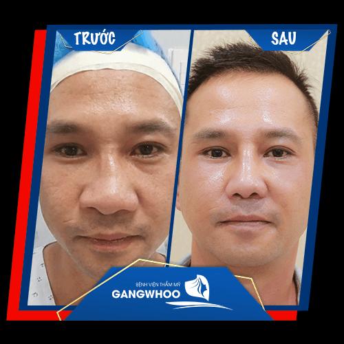 Khách hàng sửa mũi hỏng trước và sau