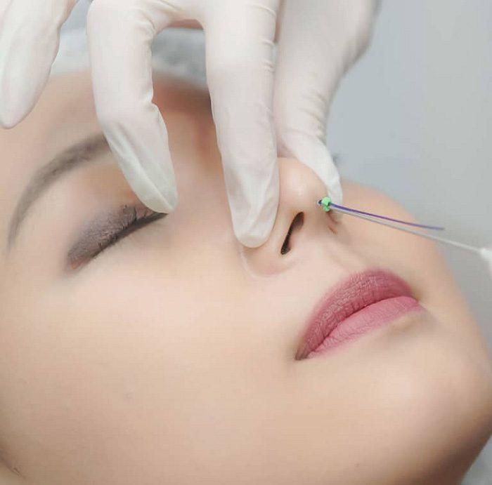 Korean nose thread lift is not permanent