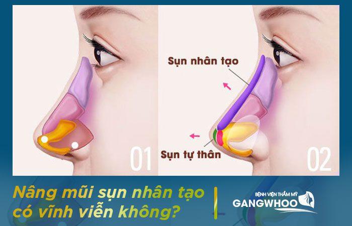 Nâng mũi bằng sụn nhân tạo có vĩnh viễn không