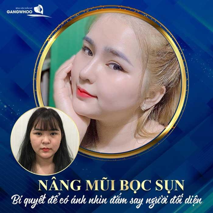 nang mui boc sun 3