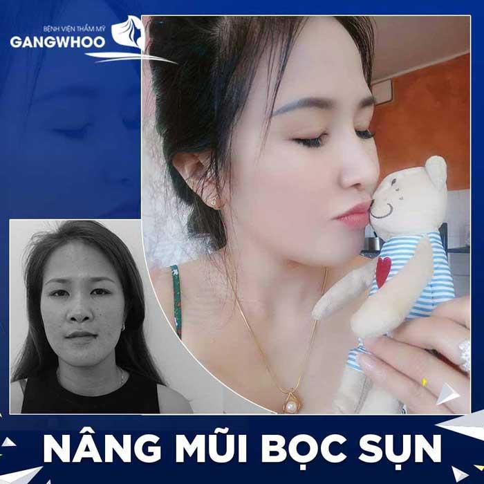 nang mui boc sun 5