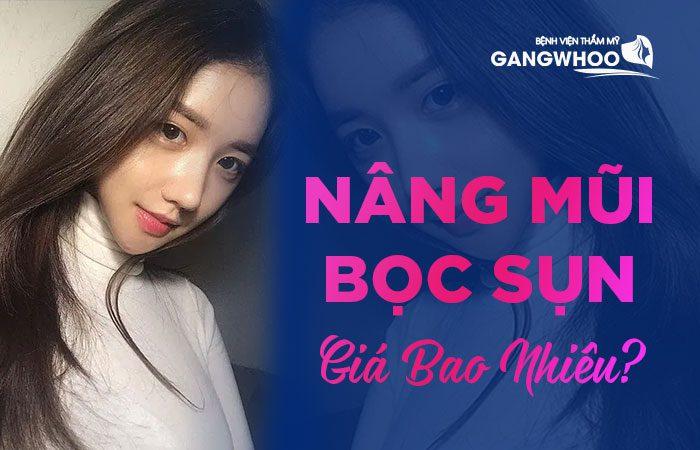 Chi phí nâng mũi bọc sụn tại bệnh viện thẩm mỹ Gangwhoo có giá là 14,000,000 đồng